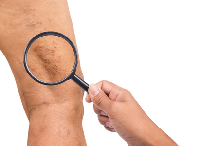 중년 여성의 다리에 정맥류가있다.