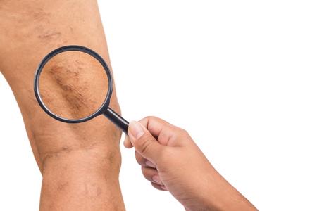 Varicose veins on the legs of middle-aged women 版權商用圖片