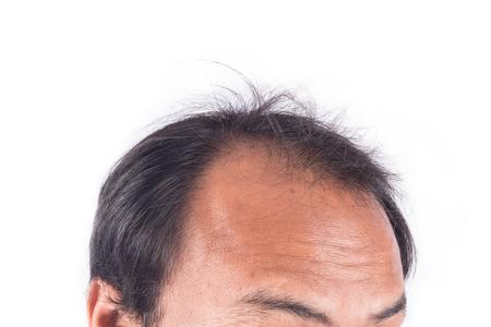 bald head of young man Archivio Fotografico