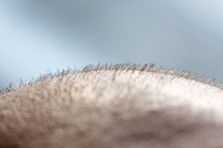 Short hair on a head close up. Scalp Man's head. Baldness. Bald man. Problems with hair growth on the head.