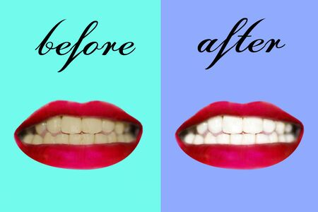 White teeth  Before using the product  After using the product