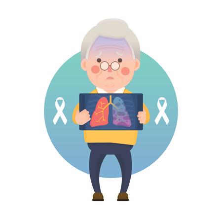 Vector illustratie van de oude man met X-ray afbeelding toont longkanker probleem, witte bewustzijn lint, stripfiguur