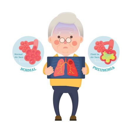 Vector Illustration of Old Man Holding X-ray Image Showing Lung Pneumonia Problem, Cartoon Character Vettoriali
