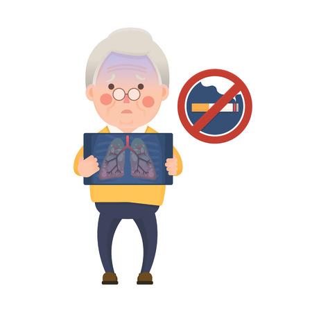 Illustration Vecteur de Old Man holding X-ray image Affichage Lung emphysème pulmonaire problème et Interdiction de fumer, Cartoon Character
