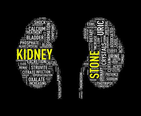 Illustration of kidney shape wordcloud word tags presenting kidney stone diseases Stock Photo