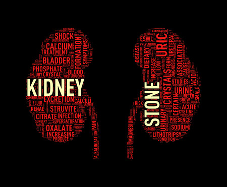 kidney stone: Illustration of kidney shape wordcloud word tags presenting kidney stone diseases Stock Photo