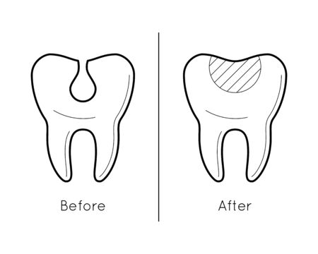 crumbling: Tooth before and after caries