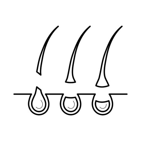 Hair removed from the skin surface without bulb Illustration