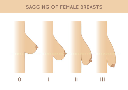 Female breast sagging