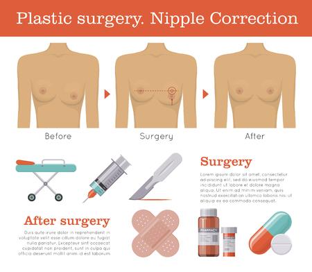 Nipple correction plastic surgery Illustration