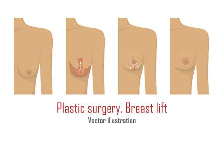 리프팅 유방 성형 수술.