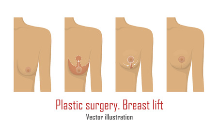 Lifting breast plastic surgery.
