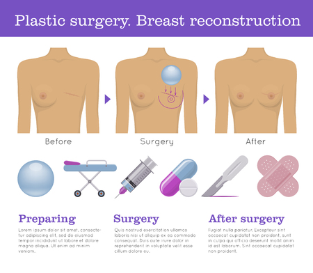Plastic surgery breast reconstruction infographic Reklamní fotografie - 83921379