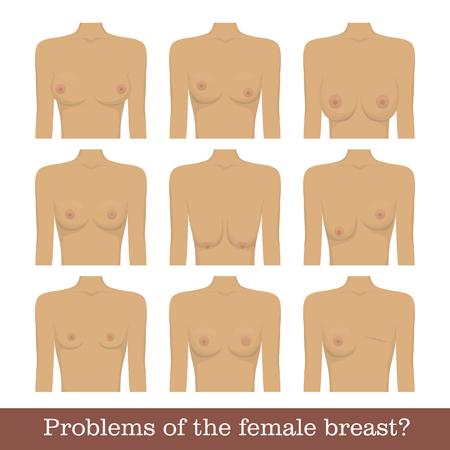 Problemas del pecho femenino