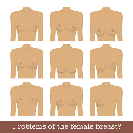 Problems female breast set Stock Vector - 83921377