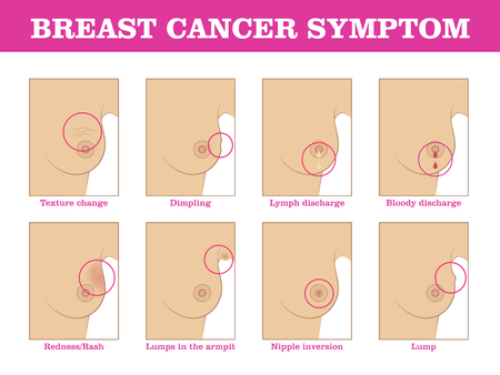 Breast cancer symptoms infographic