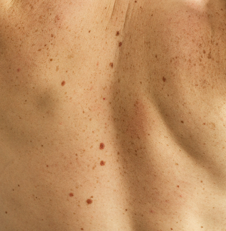 Close up detail of the bare skin on a man back with scattered moles and freckles. Checking benign moles. Sun effect on skin. Birthmarks on skin