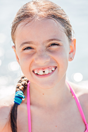 temporarily: Smiling child on a beach. Tooth positions are temporarily deformed due to orthodontic corrections