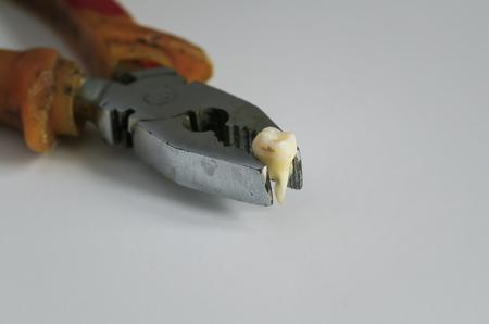 alicates: arrancó un diente podrido en un viejo alicate oxidado Foto de archivo