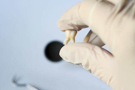 schlechter ungesunder Zahn entfernt in der Hand des Zahnarztes im Handschuh auf dem Hintergrund von medizinischen Instrumenten