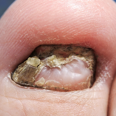 big toe with unpleasant nail affected by the fungus Stockfoto