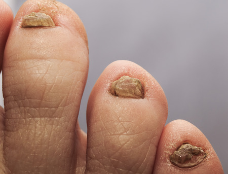 ugly toes with horrible unpleasant nails affected by fungus Stockfoto