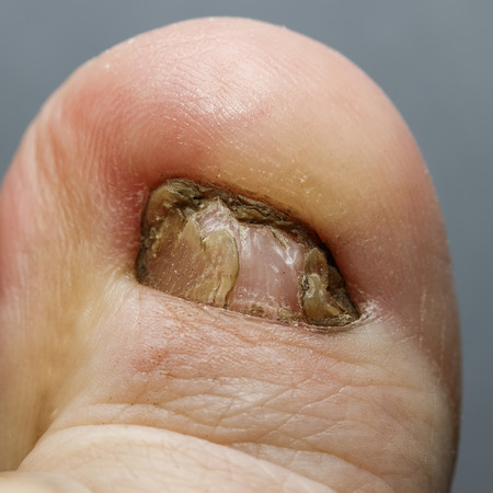 ugly big toe with unpleasant nail affected by the fungus