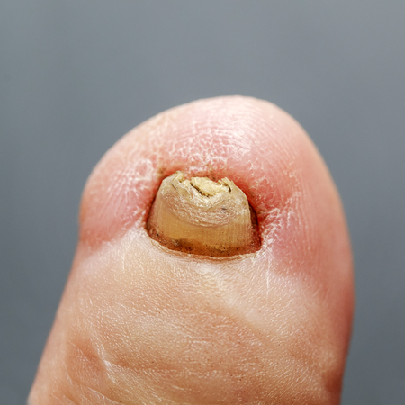 plain toe with a nasty terrible nail affected by the fungus Stock Photo