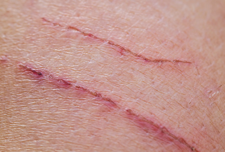 two shallow inflamed scratches on human skin