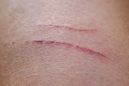 two shallow aching sore inflamed scratches on human skin