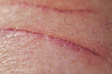 strong sick scratch wound infection on human skin Stockfoto