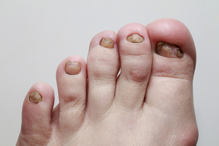 foot with nagatani struck by a terrible and nasty disease fungus closeup Stock Photo