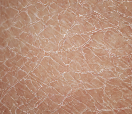 texture close - up human skin with dermatological problems of dryness and cracking