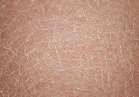 texture of human skin large with dermatological problems of dryness and cracking