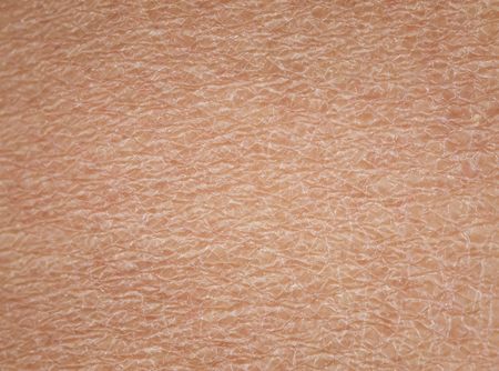 close-up of human skin with dermatological problems of dryness