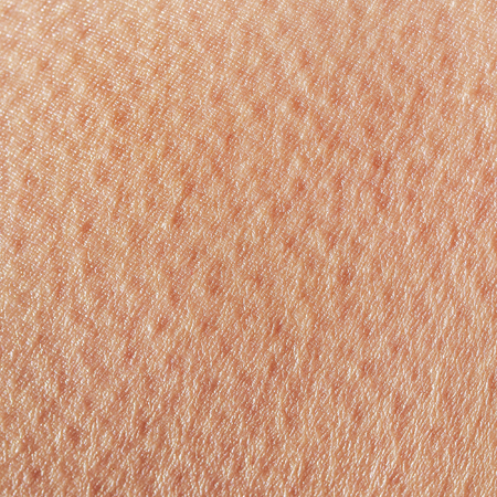 background of a texture of a tanned young female skin of a man covered with pores and small goosebumps