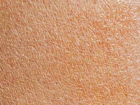 background texture of fading dry human skin covered with fine wrinkles