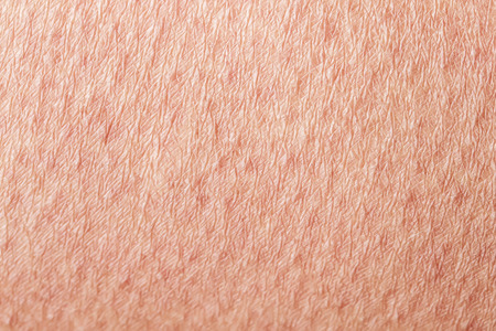 Cosmetology textured background of human skin close up, covered by s, crawl and wrinkles Zdjęcie Seryjne
