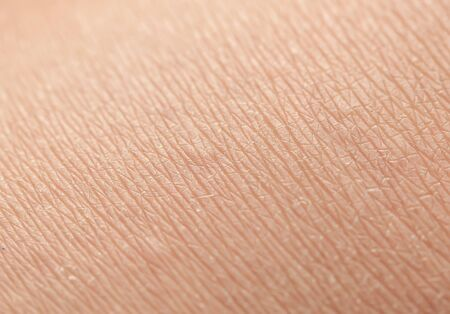 human skin texture covered with fine lines and cracks and small blisters