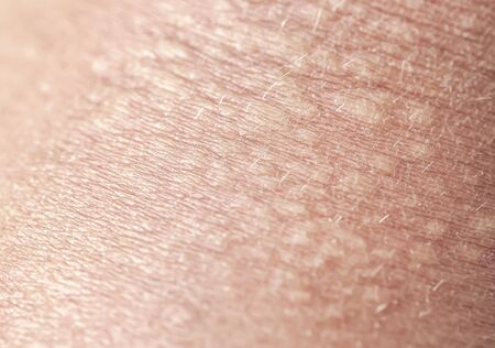 background of the texture unhealthy irritated human skin covered with small wrinkles ,cracks and blistering Stok Fotoğraf