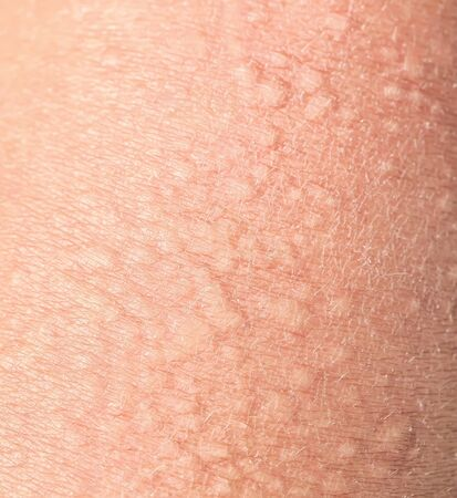 background of the texture unhealthy irritated human skin covered with small wrinkles ,cracks and blistering 版權商用圖片