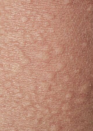 background of texture of unhealthy irritated human skin covered with fine lines ,cracks and blisters burns