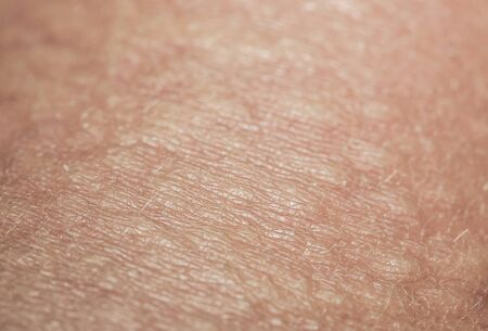 background of the texture unhealthy irritated human skin is covered with bubbles, bumps and blisters from burns and allergies Stok Fotoğraf