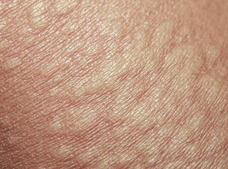 background of the texture unhealthy irritated human skin is covered with fine wrinkles ,cracked and blistered from the burn and allergies Stok Fotoğraf