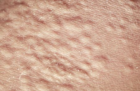 background of the texture rogennoe human skin is covered with fine wrinkles ,cracked and blistered from the burn and allergies