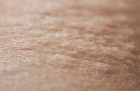 side view of the texture of human pink, irritated skin covered with wrinkles, hairs and blisters from burns and allergies