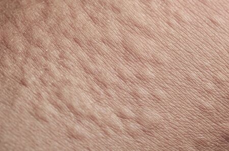 unhealthy human skin texture covered allergic blisters and blisters