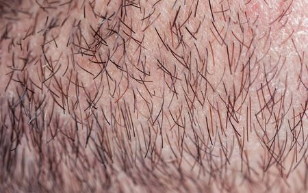 background with a man's chin skin texture covered with fine and coarse hairs and bristles and scales