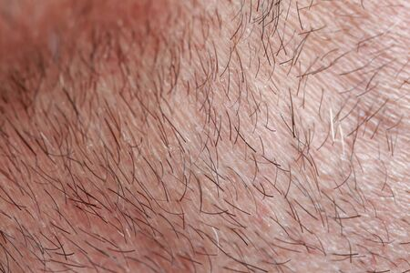 background with a man's chin skin texture covered with hair and beard bristles