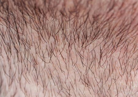 skin texture of a young man covered with hair and bristles of different colors and lengths 版權商用圖片